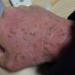 【経過報告】アトピーの症例を画像で解説!薬なし3ヶ月でここまで改善した事例